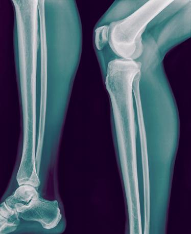 Injured While Traveling